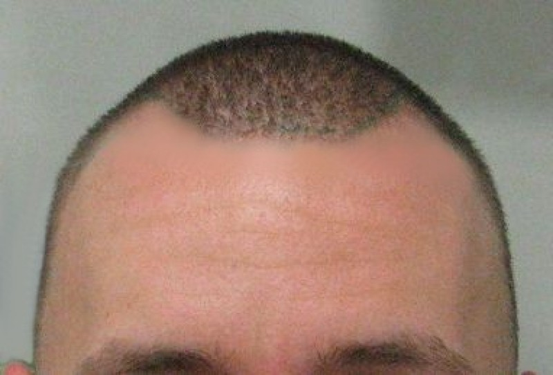 Dénes Before Hair Transplant