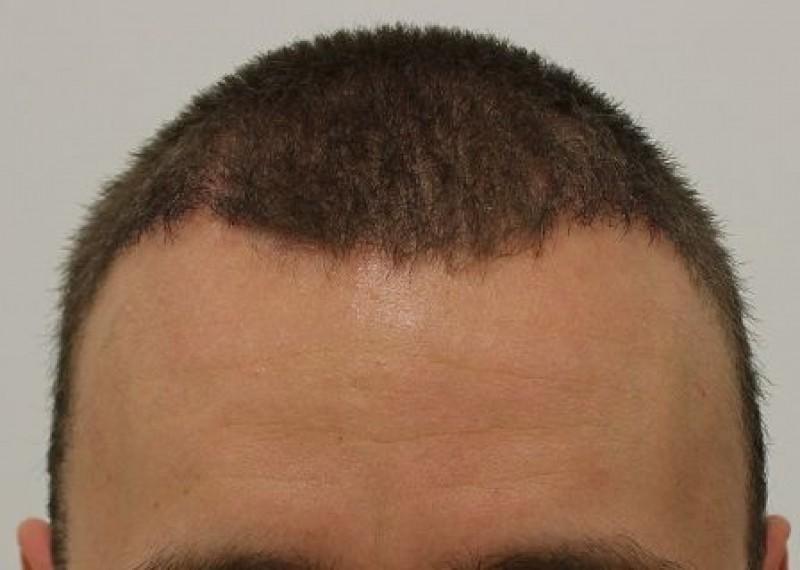 Dénes After Hair Transplant