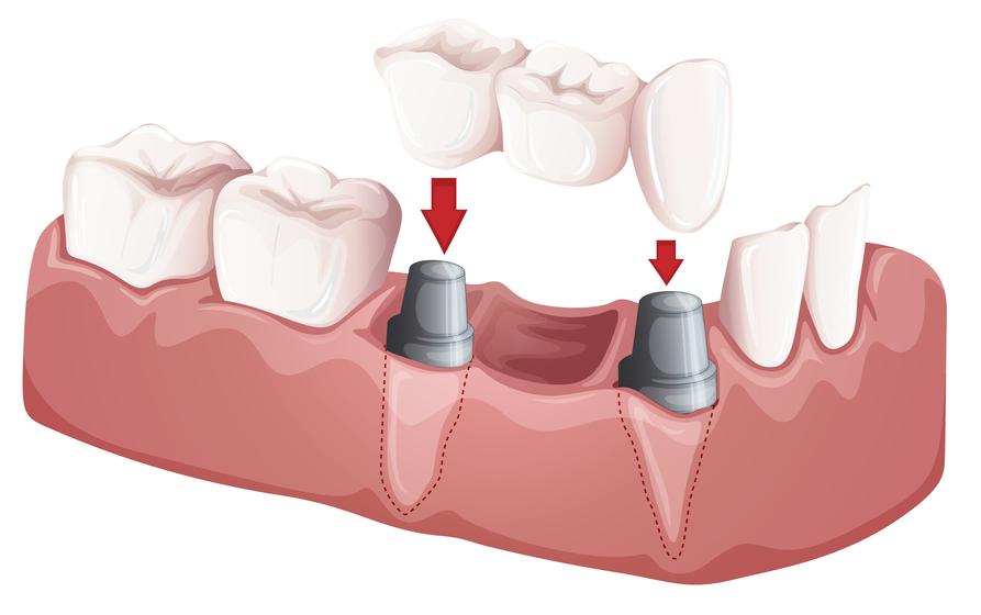 Dental Bridge