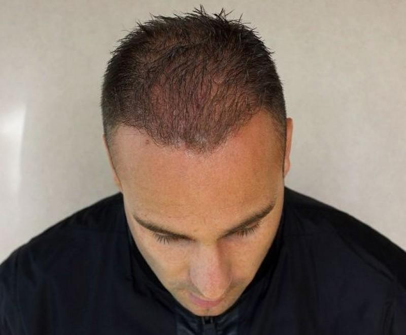Tibor After Hair Transplant